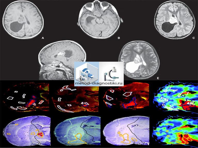 Томография головного мозга при беременности