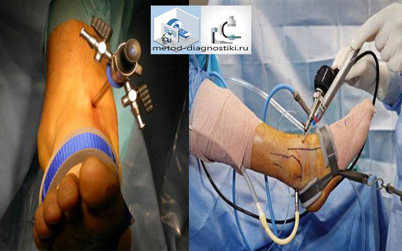 Последствия артроскопии челюстного сустава упражнения для плечевого сустава при артрозе от бубновского