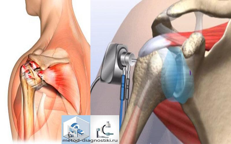 Артроскопический способ плечевой сустав болит колено при ходьбе на каблуках