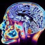 Показания и противопоказания к МРТ головного мозга – магнитно-резонансная томография головы