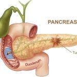 Причины панкреатита и болезни поджелудочной железы