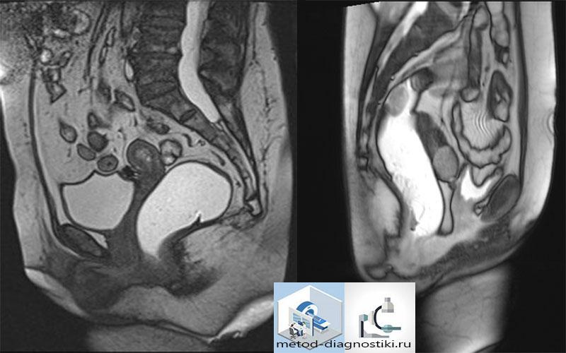 фото МРТ малого таза у женщин