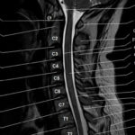 Что показывает МРТ шейных отделов позвоночника?