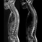 Что лучше МРТ или КТ позвоночника – чем отличаются процедуры, какая томография лучше?