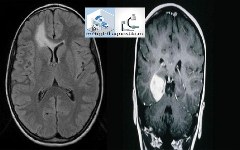 изображение МРТ головного мозга с контрастным веществом