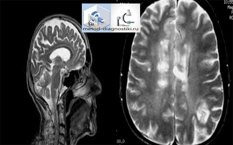 снимок МРТ головного мозга с контрастом
