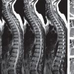 МРТ грудных отделов позвоночника: что показывает процедура?