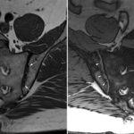 МРТ крестцово-подвздошных сочленений: показания к проведению, необходимость использования контрастного вещества