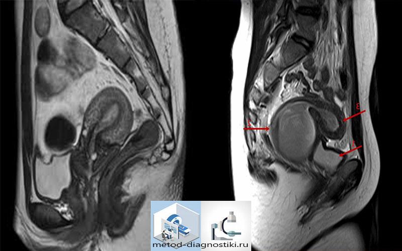 снимок МРТ желудка