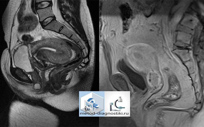 изображение МРТ малого таза у мужчин