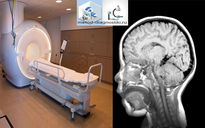 ребенок на обследовании МРТ