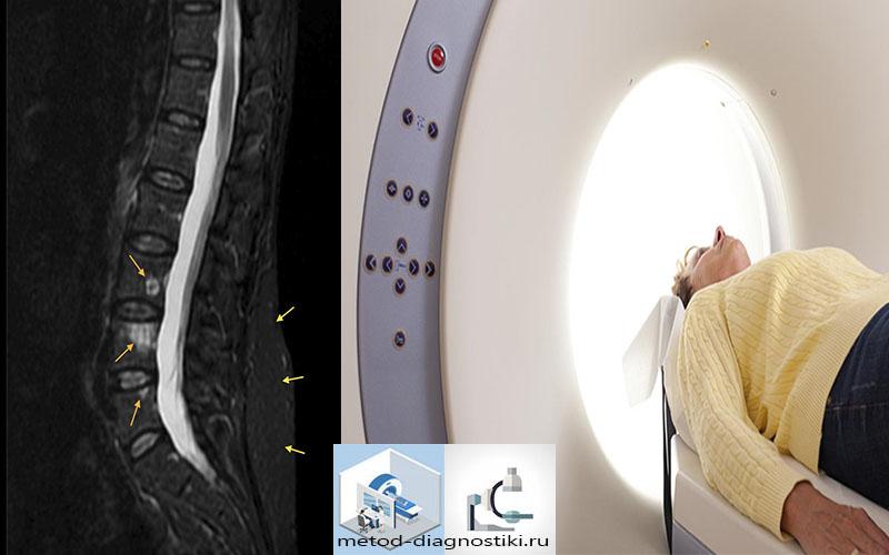 человек внутри томографа