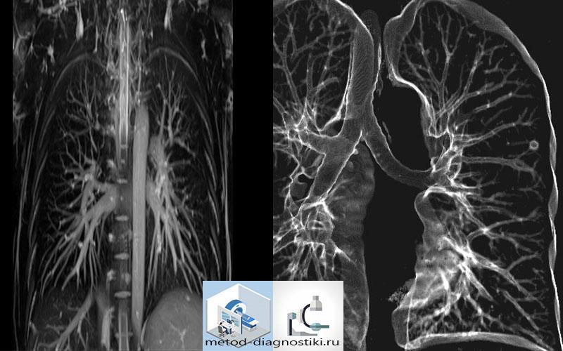 грудная клетка с контрастом на томографе