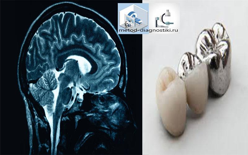 головной мозг и зубные коронки