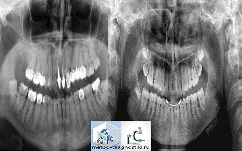 снимок зубов с пломбами и штифтами