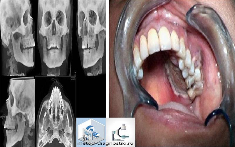 снимок черепа для исследования зубов