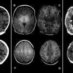 В чем разница между КТ и МРТ – какое исследование стоит выбрать и что информативнее?