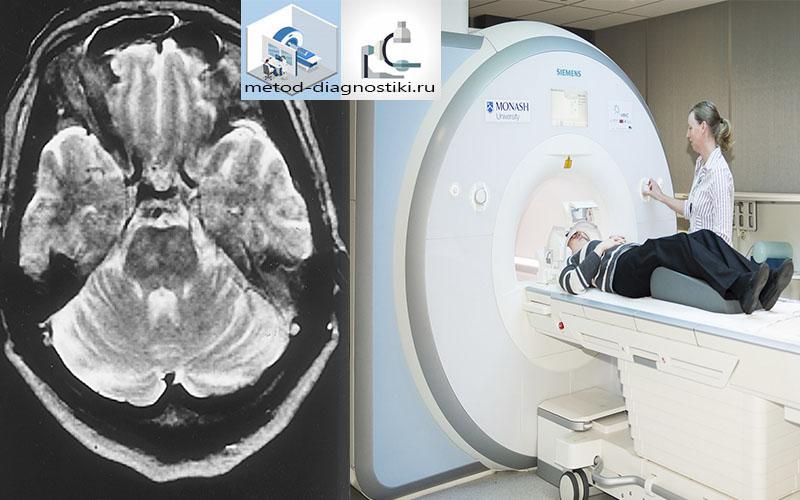 мрт и скан головного мозга