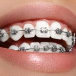 Можно ли делать МРТ пациентам с брекетами на зубах?