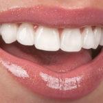 Можно ли делать МРТ пациентам с имплантами зубов из титана и сплавов других металлов?