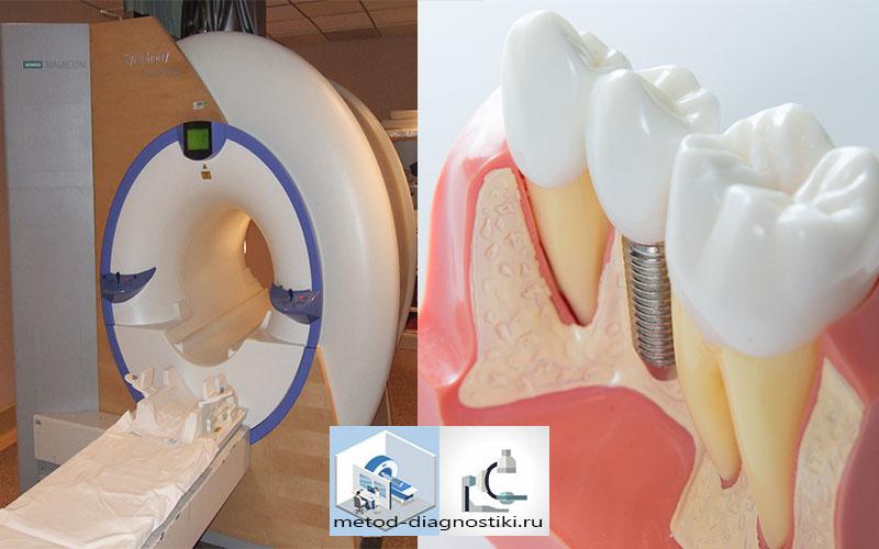 томограф и имплант зуба