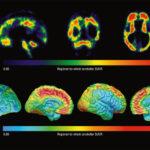 МРТ диагностика головного мозга: что выявляет процедура и как обследование проводится?