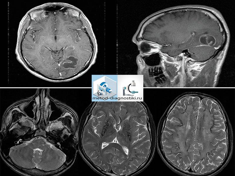снимок мозга на мрт