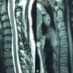 МРТ диагностика горла и гортани – что показывает томография с контрастированием?
