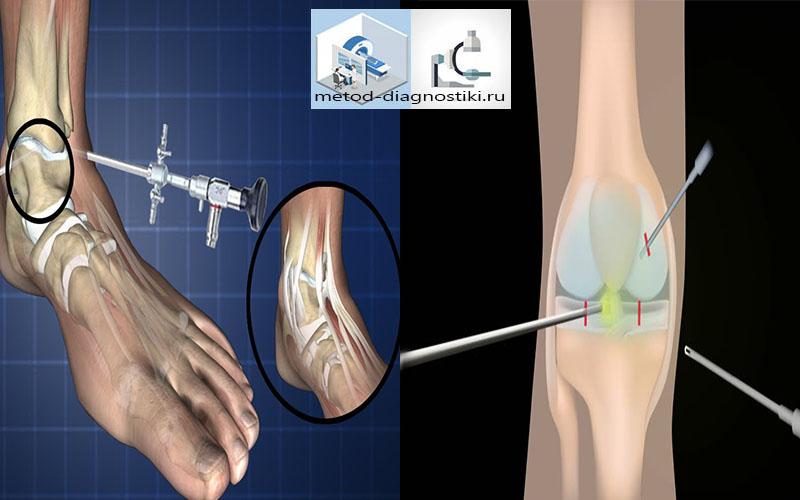 как проводят артроскопию колена