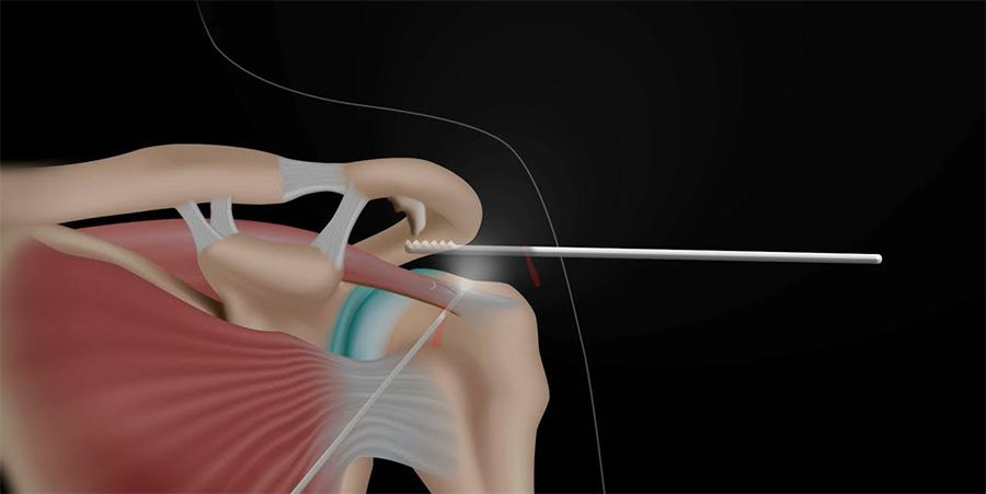 Артроскопия плечевого сустава (плеча): операция, реабилитация после
