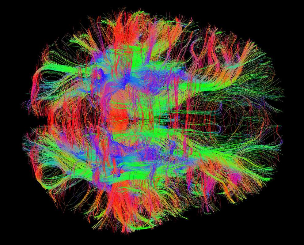 Магнитно-резонансная томография (МРТ) - ангиография