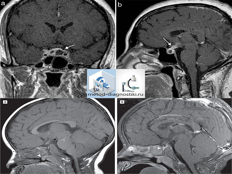фото мозга на томографе