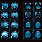 Зачем проводят МРТ головного мозга – диагностирование опухолей и патологий сосудов
