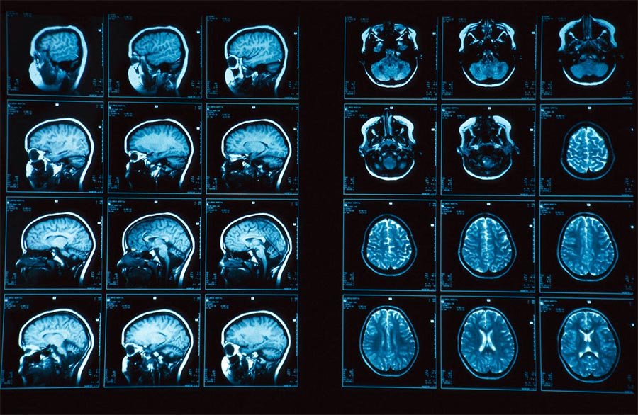 МРТ головного мозга - цены на магнитно-резонансную томографию сосудов головного мозга и гипофиза с контрастом