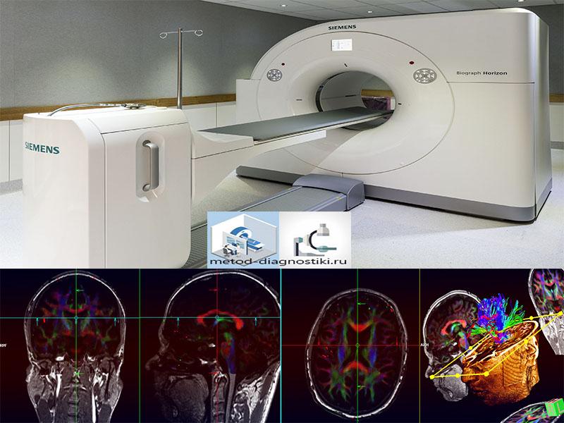 томограф и снимок мозга