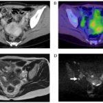 МРТ шейных лимфоузлов – в каких случаях назначается магниторезонансная томография?