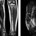 Что показывает МРТ ноги и голени: магнитно-резонансная томография конечностей
