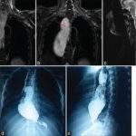 Что показывает МРТ пищевода и кишечника – в каких случаях пациентам назначается томография?