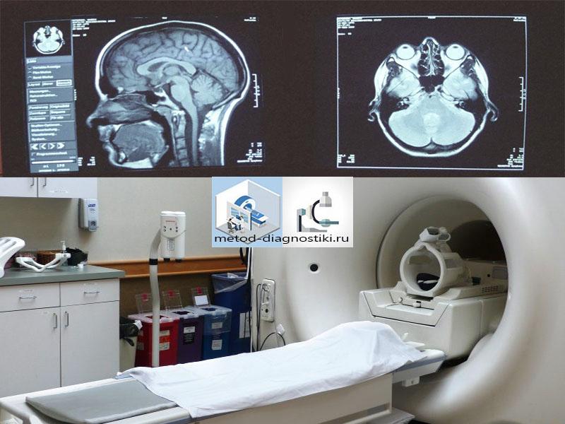 томограф и снимок головы