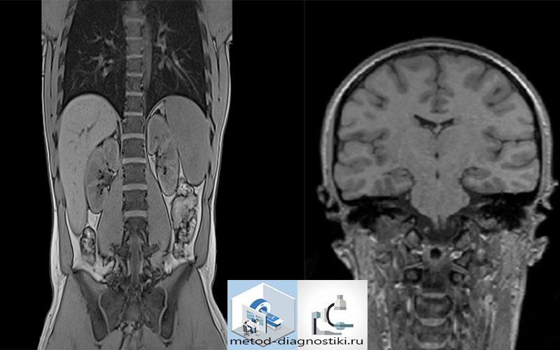 схема томографии головы
