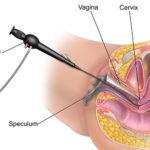 Кровотечения и кровянистые выделения после проведения гистероскопии матки: повод для беспокойства?