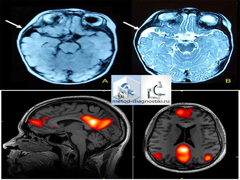 контрастный снимок головы на томографе