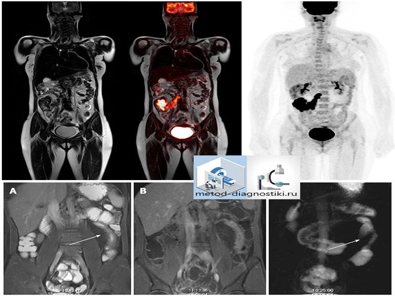 снимок томографии желудочно-кишечного тракта