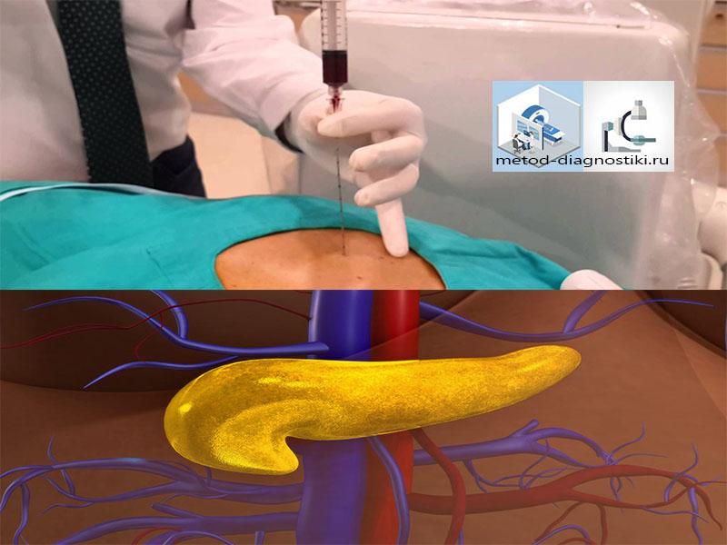 как делают биопсию