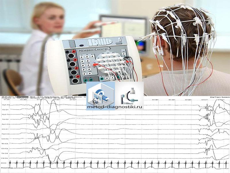сенсоры и распечатка ээг