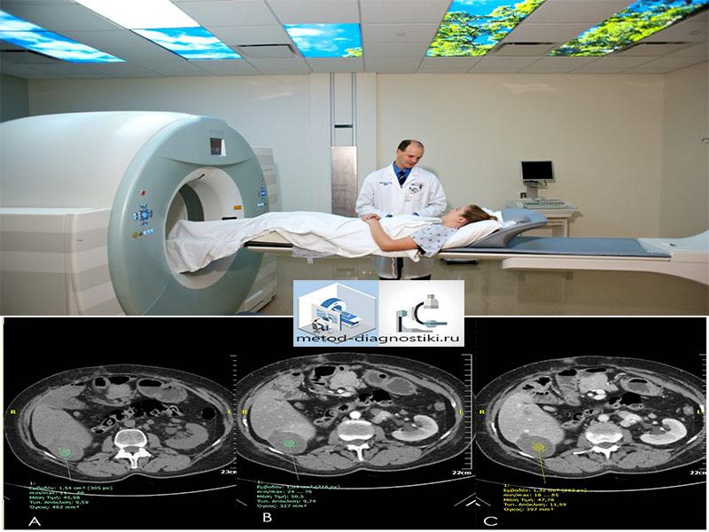 томография всего организма