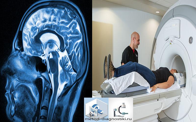 томограф и скан головного мозга