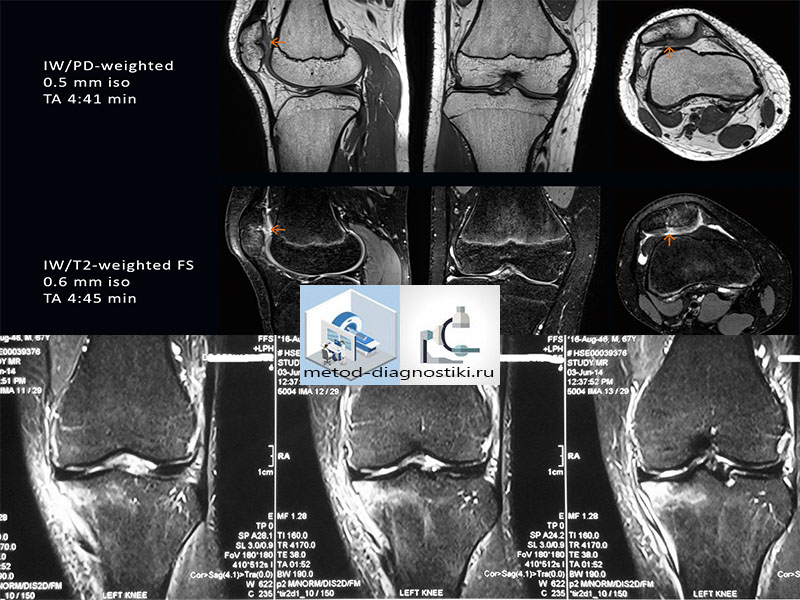 обследование колена на томографе