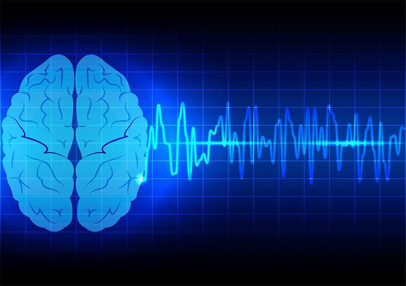 КТ и МРТ головного мозга после инсульта: какое исследование лучше? Какое исследование инсульт на мрт