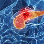 Очаговые образования головки поджелудочной железы – диагностика и лечение